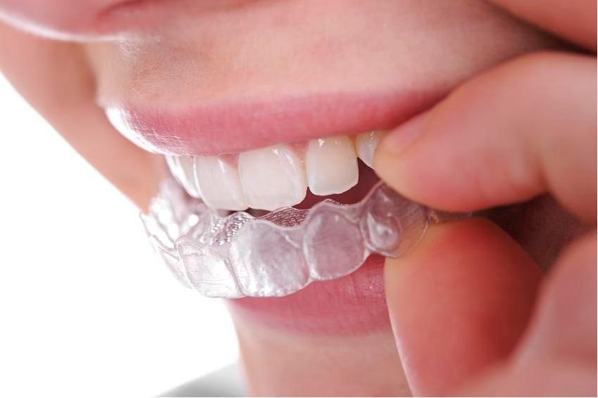 Szyna na zęby przeciw zgrzytaniu w nocy