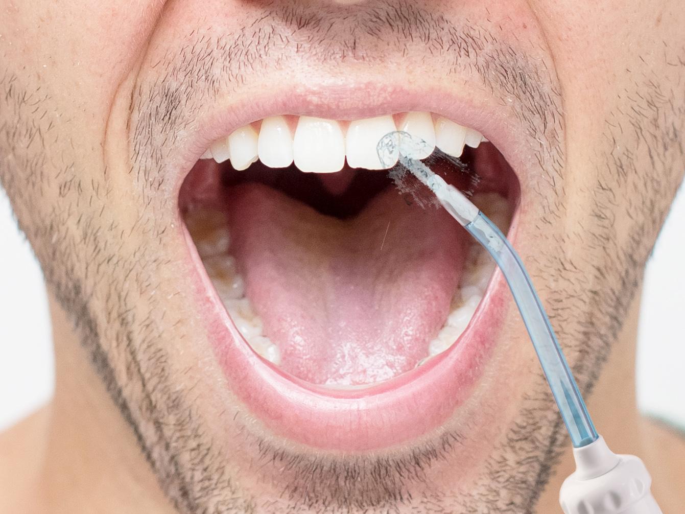 Irygator do czyszczenia szczelin między zębami domowy ClearJet X1
